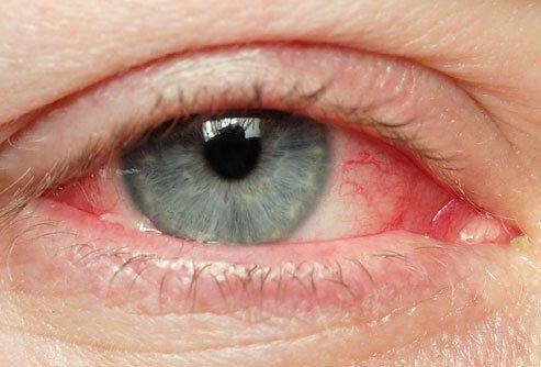 Trockene Auge